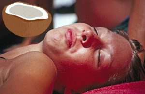 Kokosöl bei Sonnenbrand